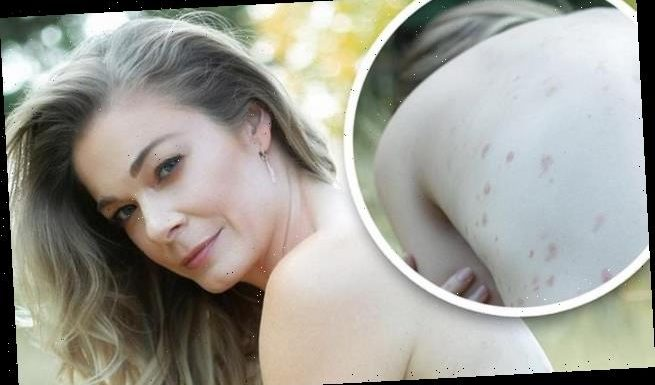 LeAnn Rimes poses NUDE on social media for World Psoriasis Day