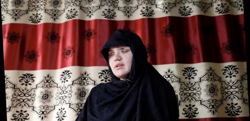Afghan woman left blind from attack after taking job as police officer