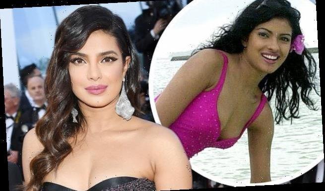 Priyanka Chopra, 38, was called Plastic Chopra as bad operation