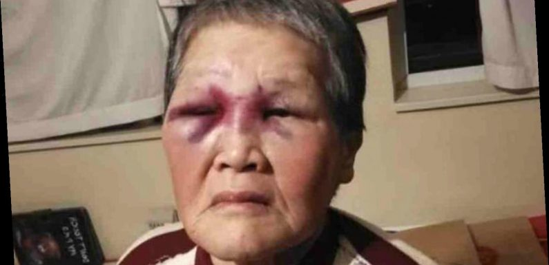 Asian Woman in Calif. Allegedly Attacked by Stranger Turns the Tables on Him, Fights Back with Bat