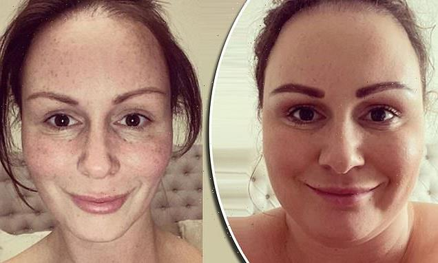 Chanelle Hayes shows off her dramatic face weight loss
