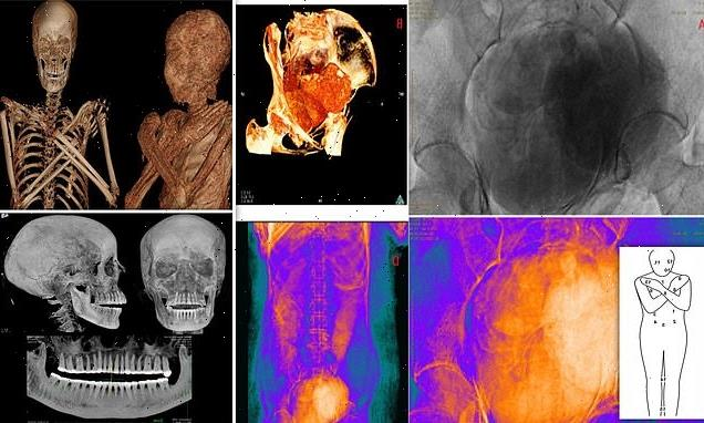 World's first PREGNANT ancient Egyptian mummy has been discovered