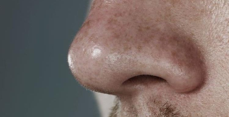 Having a big nose means a bigger penis, scientists say after measuring dozens