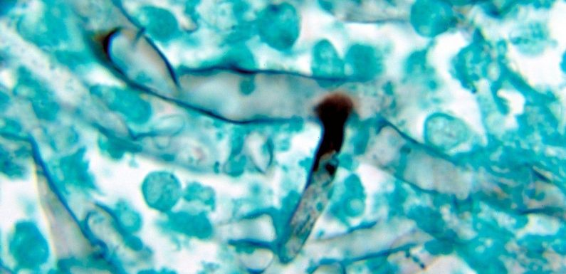 What diabetics should know about the deadly 'black fungus' infections affecting India's COVID-19 patients