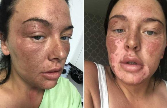 Mum suffers horrific facial burns after microwave egg poaching hack goes wrong and boiling water explodes all over her