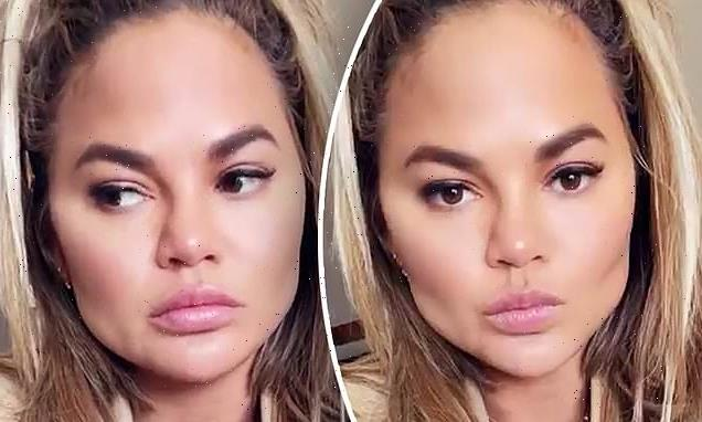 Chrissy Teigen had fat removed from her face with plastic surgery